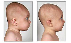 Ce este plagiocefalia sau sindromul capului turtit la bebelusi